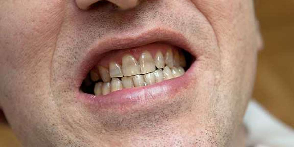 Pictures Teeth Erosion Full Version Exe Crack Windows Ultimate